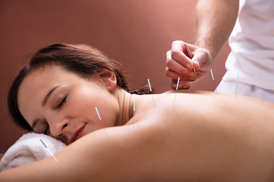 Woman getting acupuncture in Toowoomba
